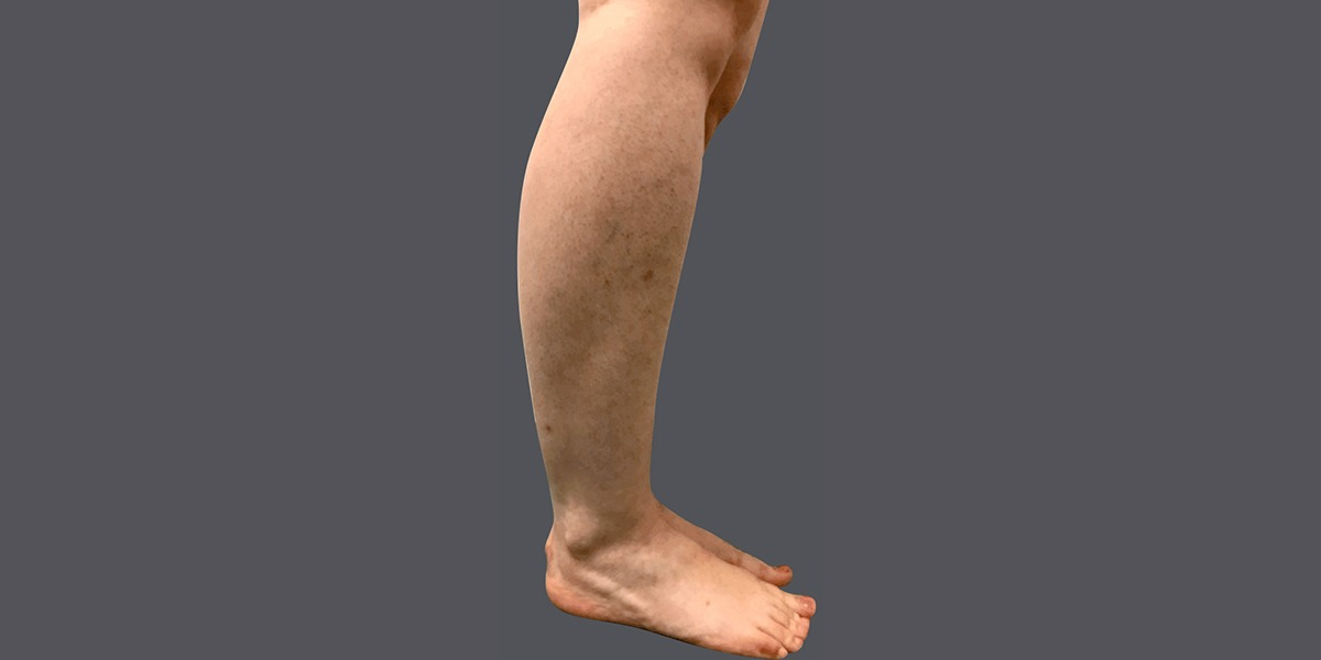Calves-and-Ankles-17-2_B
