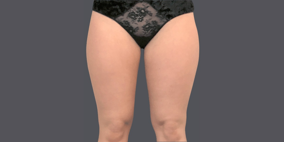 Inner-thighs_A