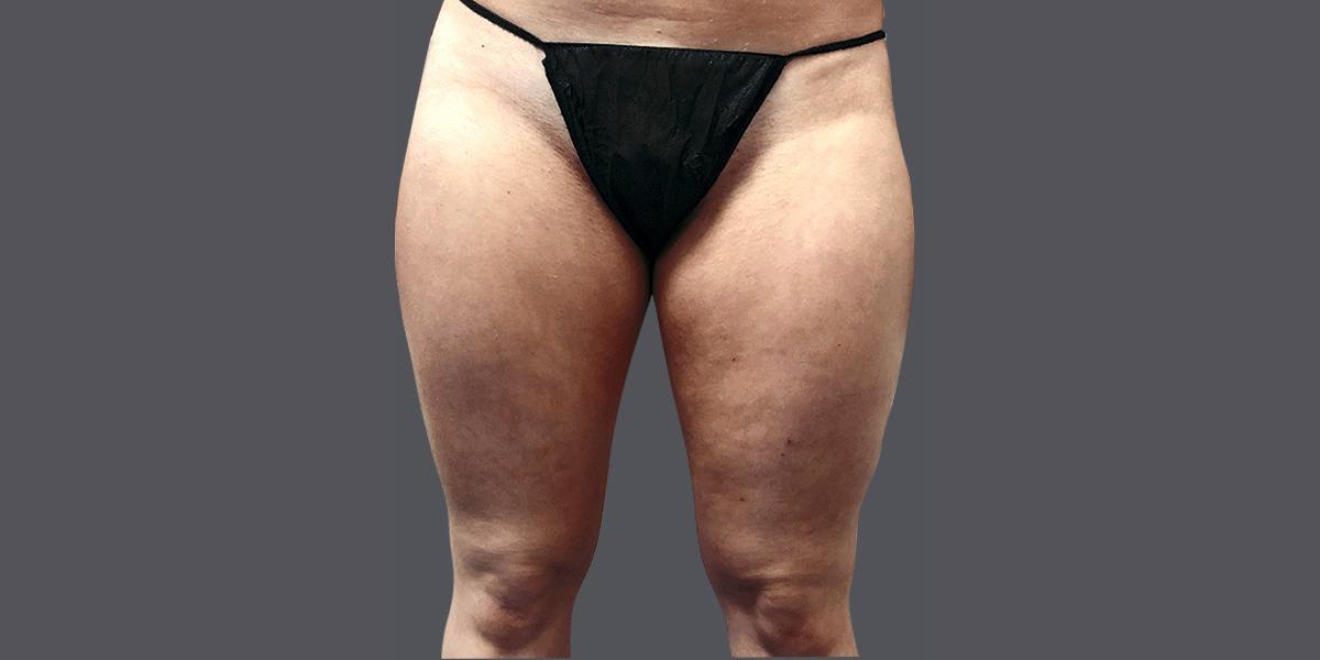 Inner-thighs_B