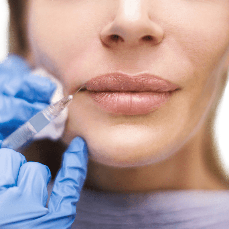 Shape Challenged Lips