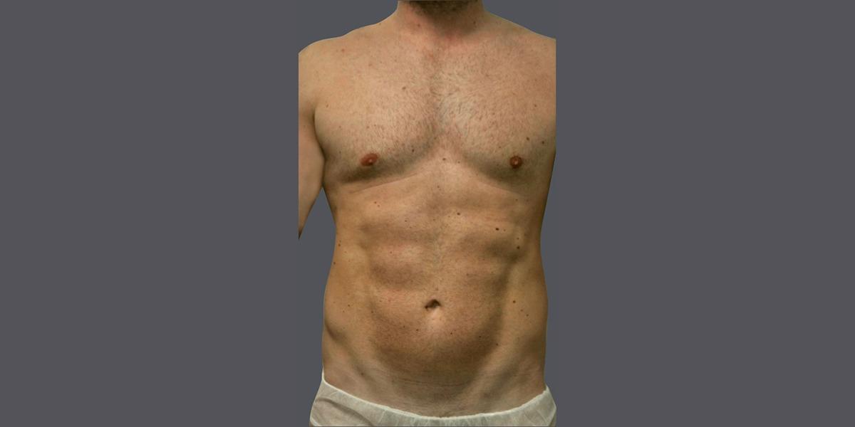 Vaser liposuction hi definition