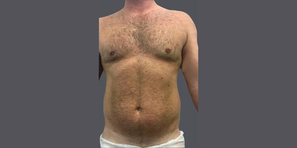 Vaser liposuction hi def