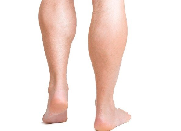 Stubborn Fat On Calves
