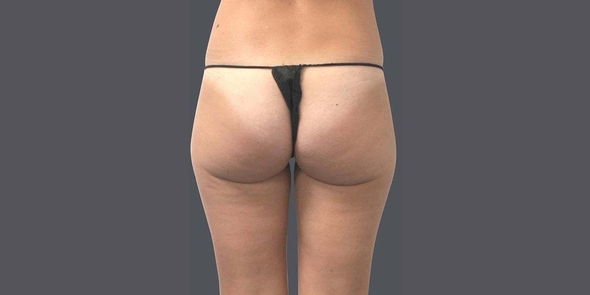 Vaser-Lipo-Buttock-rehaping-2016_B