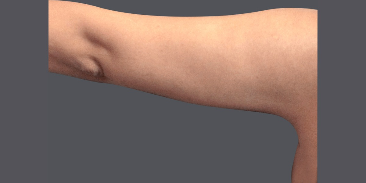 upper-arms_A