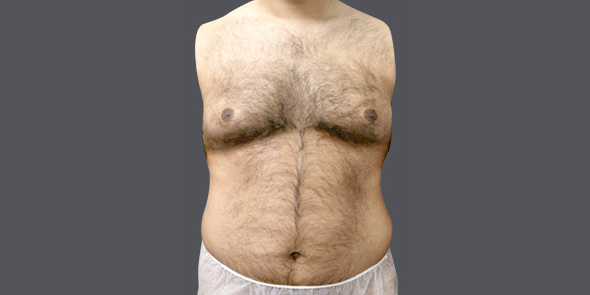 Vaser Liposuction abs and six pack