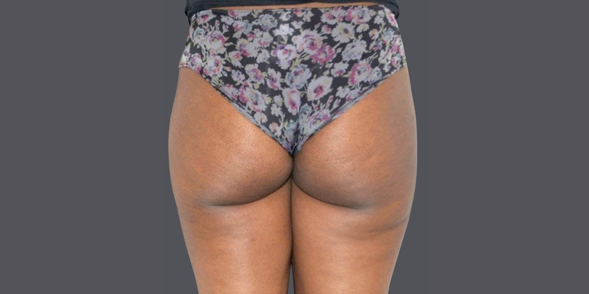 vaser lipo- buttock shaping 2015_A
