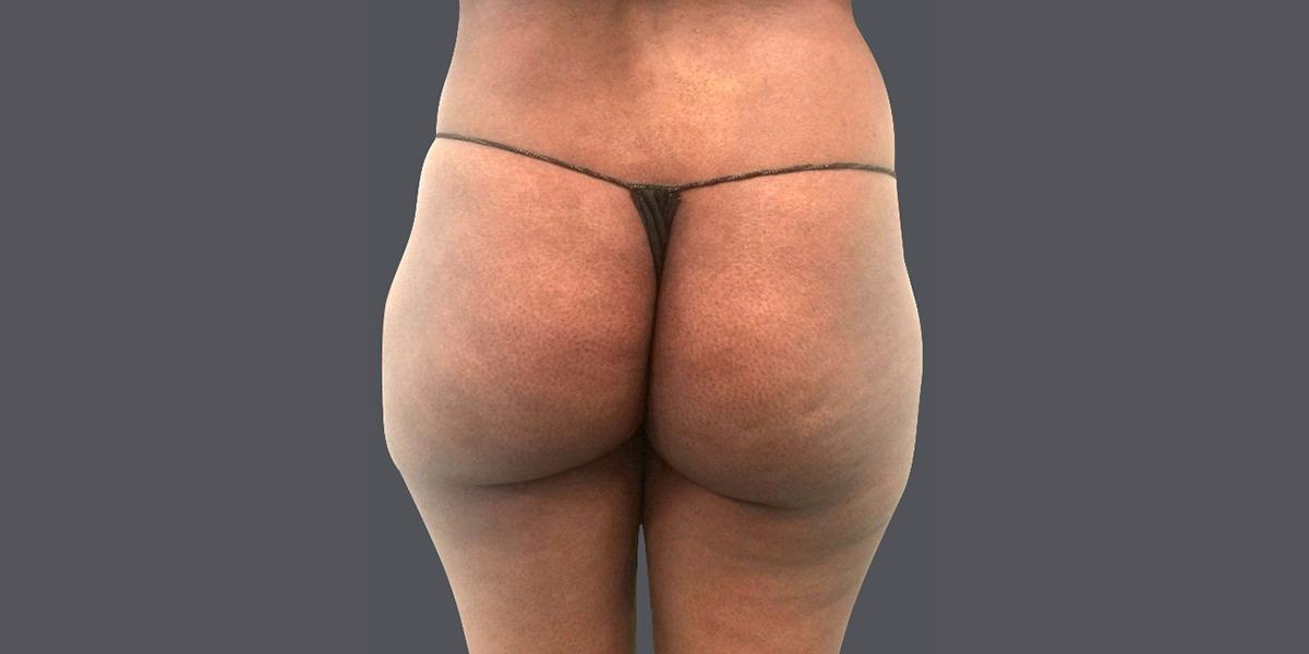 vaser lipo- buttock shaping 2015_B