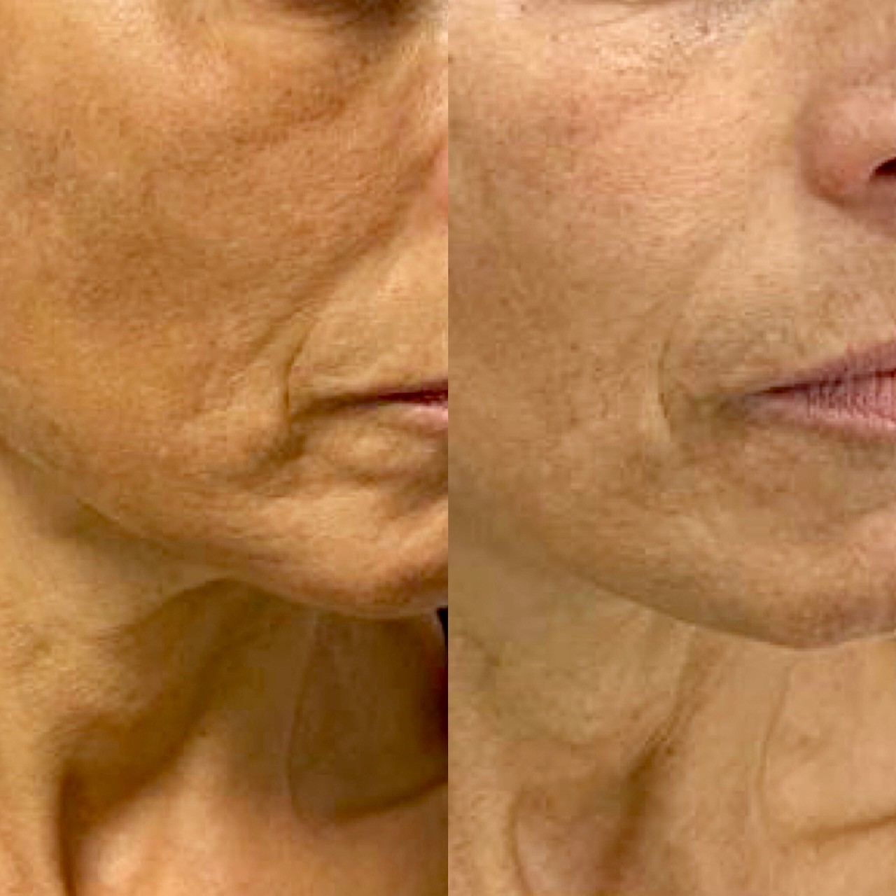 ULTRAcel HIFU skin tightening treatment