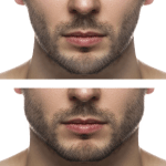 Chin Enlargement And Augmentation: How To Get The Best Results?