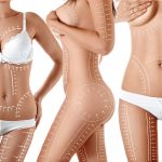 How To Achieve The Best Liposuction Results