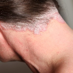 Treatment for Psoriasis