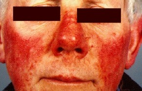 Treatment for Rosacea
