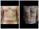 vaser lipo for men Dr Mike Comins