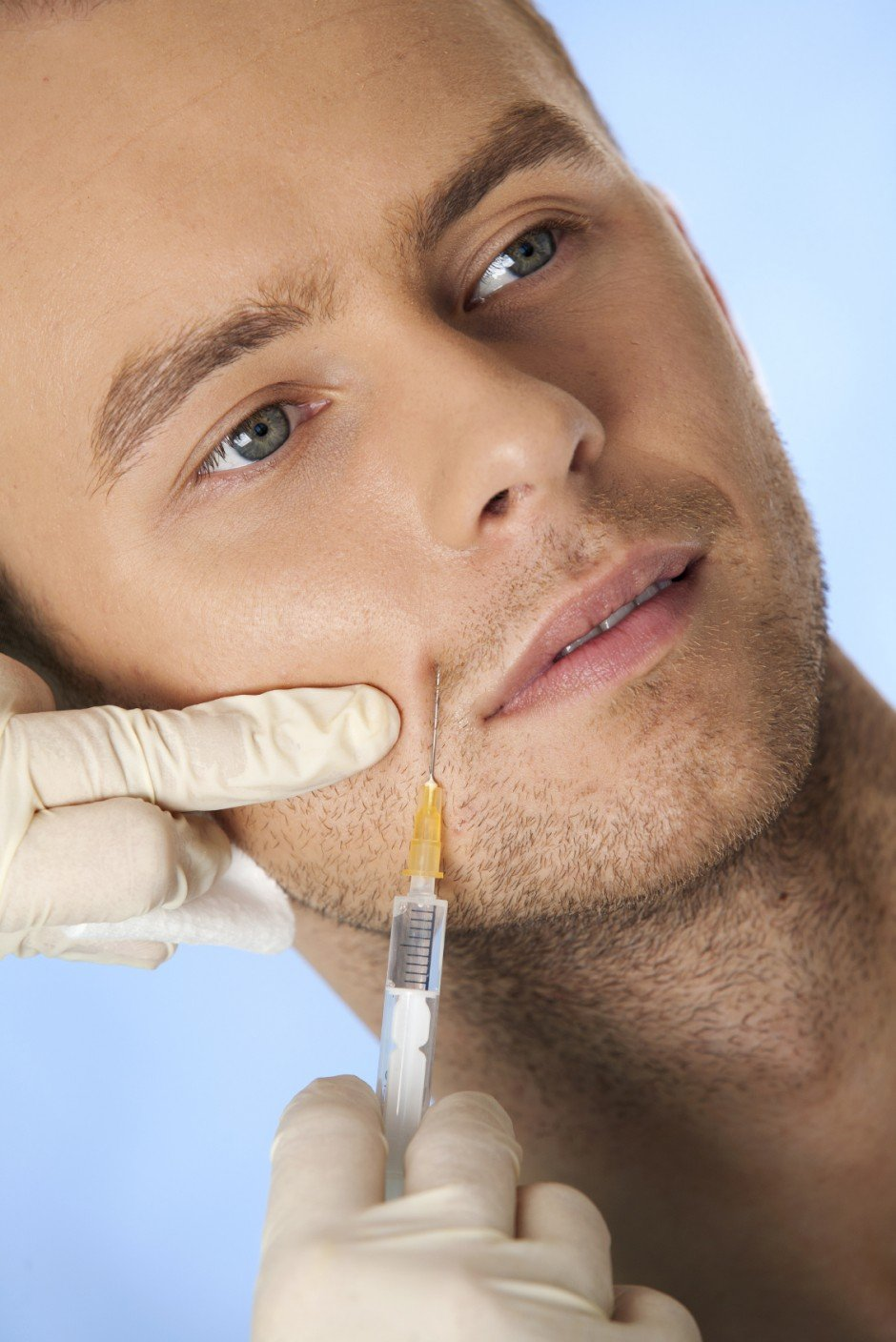 Mouth Lines Treatment for men