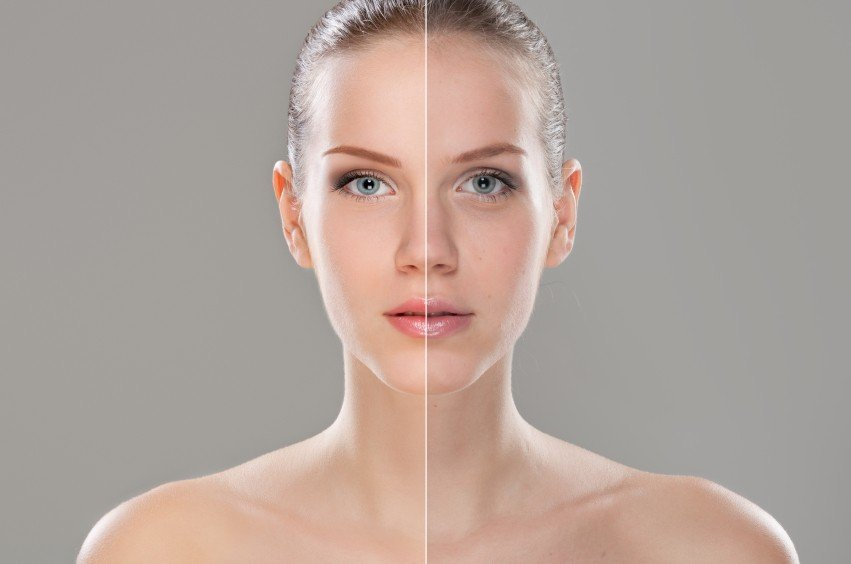 Treatment for Rosacea and Psoriasis