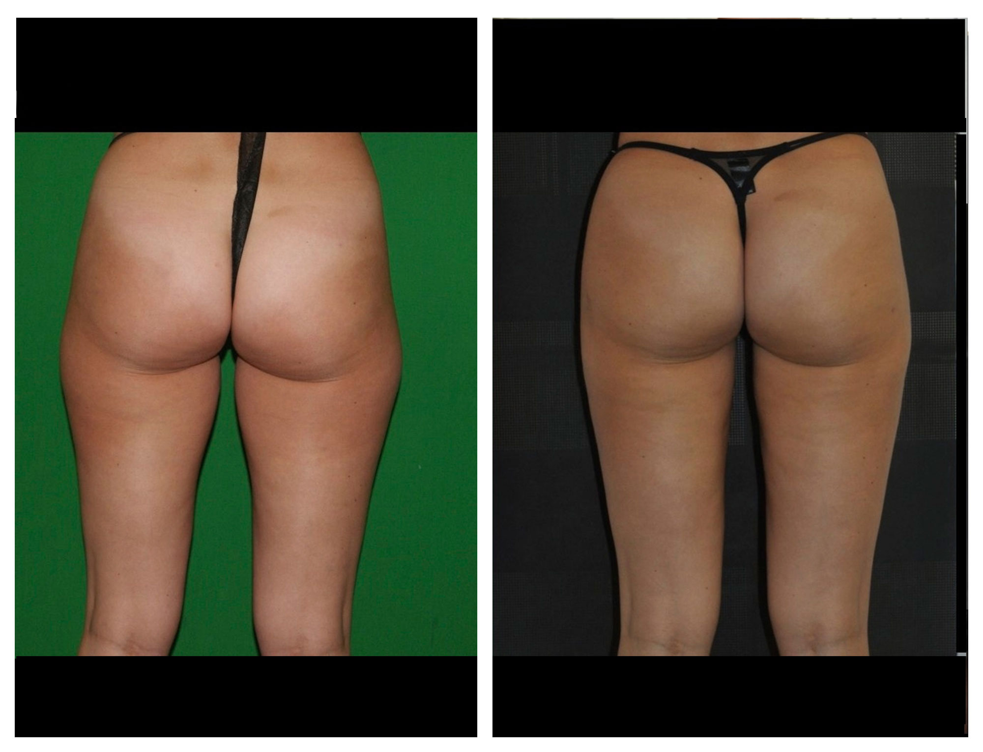 Vaser lipo  thighs* vaser lipo procedures Dr Mike Comins