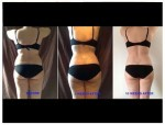 vaser hi-def liposculpture at Hans Place Clinic