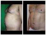 vaser liposculpture abdomen Dr Mike Comins