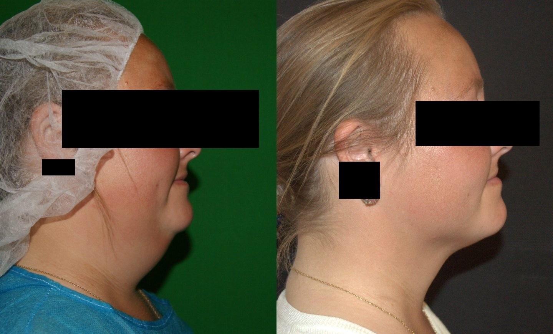 neck fat removal, vaser liposuction